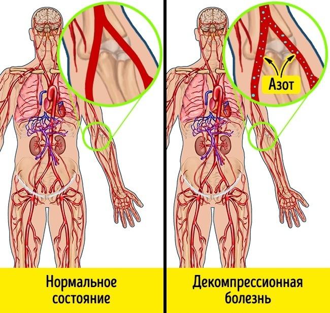 Изображение - Какое давление влияет на человека 00-6