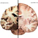 Атрофические изменения в тканях головного мозга