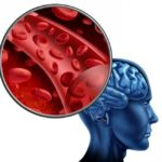 Болезни сосудов мозга