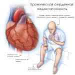 Хроническая недостаточность сердца