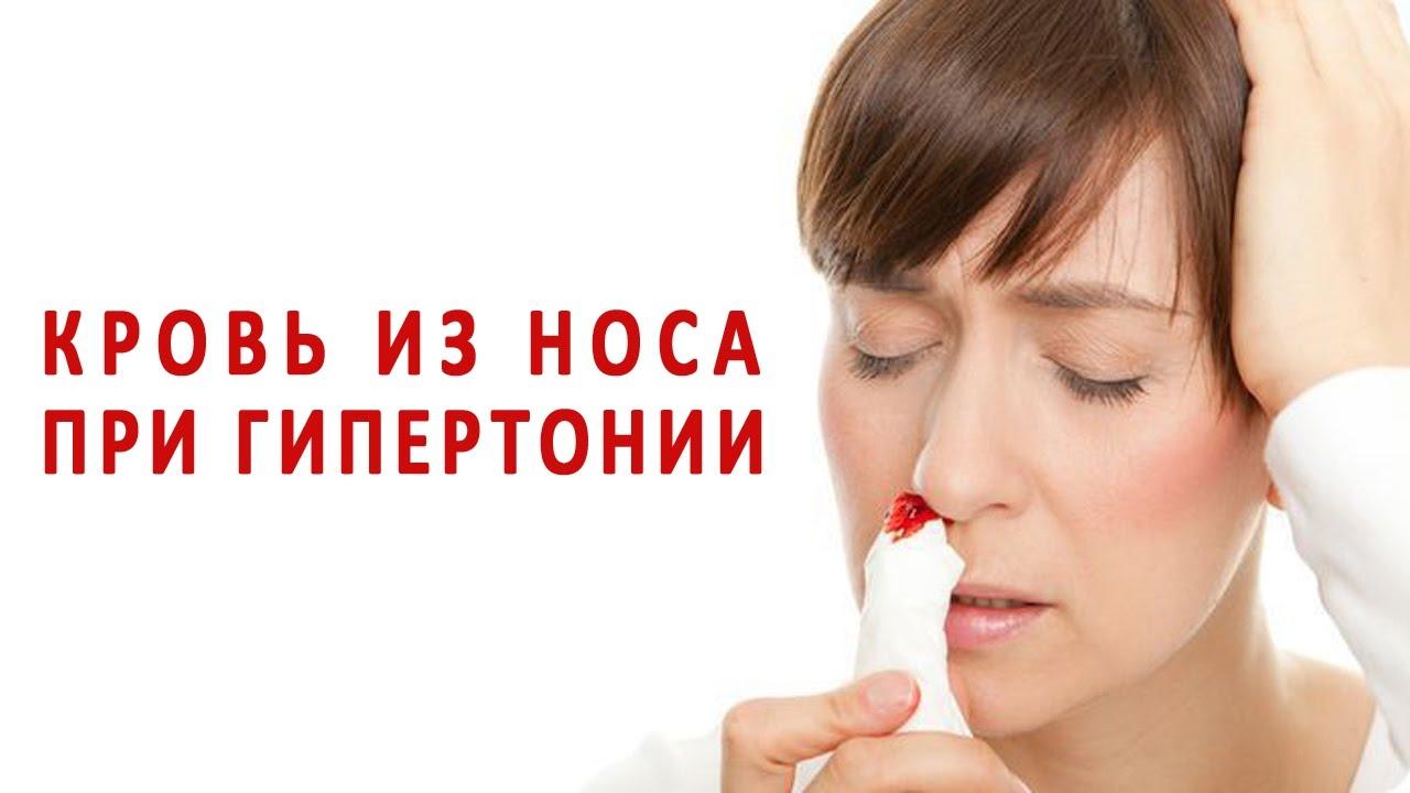Что сделать чтобы пошла кровь из носа в домашних условиях