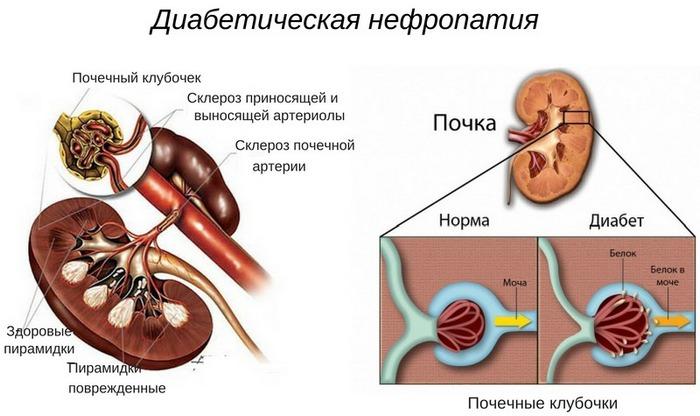 Нефропатии диабетиков