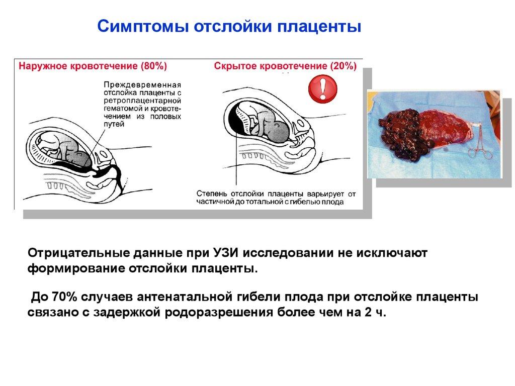 Диуретики при гипертонии: все о правильном применении