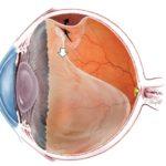 Отслоение сетчатки глаз