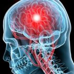 Патологические процессы в головном мозге