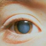 Помутнения в глазах