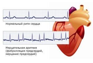 Сбои сердечного ритма