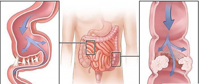 Спазмы появляются и в кишечнике