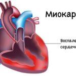 Воспалительный процесс в сердечной мышце