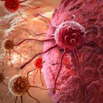 Злокачественные опухоли в организме