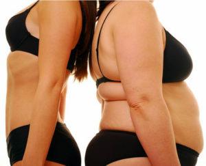 Резкое повышение массы тела больного
