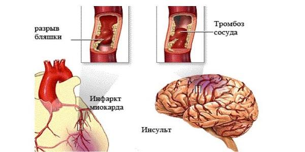 Инсульт и инфаркт миокарда