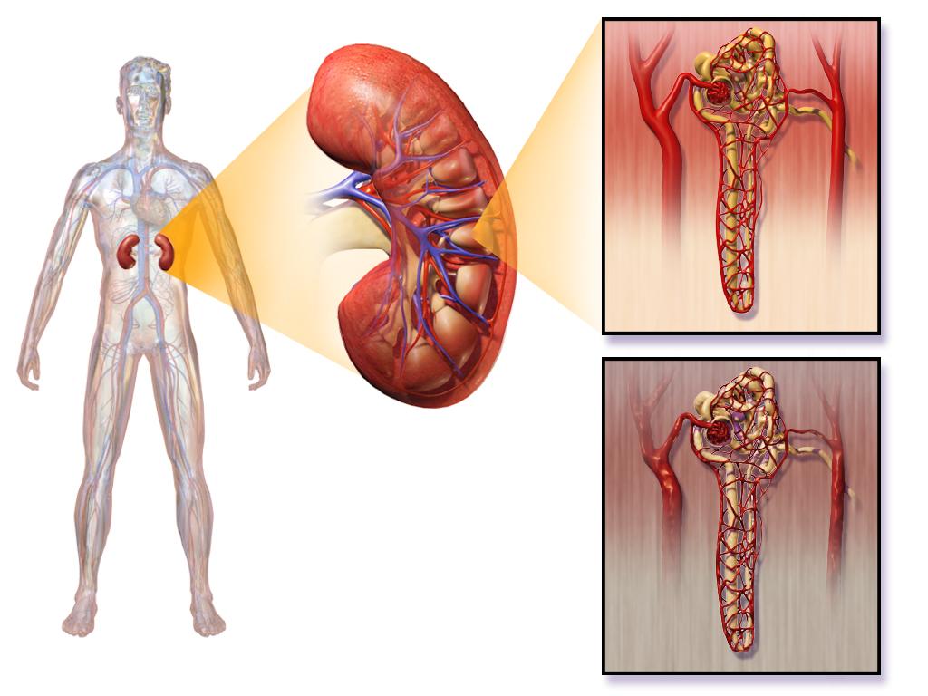 Нефропатия диабетическая