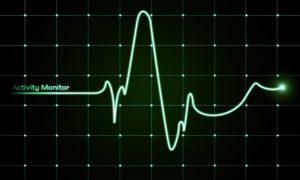 Замедление пульса