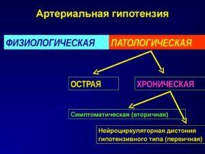Артериальная гипотензия