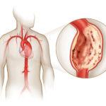 Изображение - Давление человека формула Anevrizma-aorty-150x150