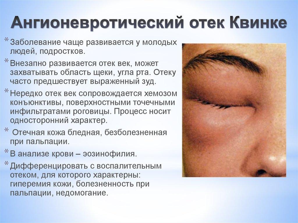 Отек квинке симптомы и лечение у взрослых