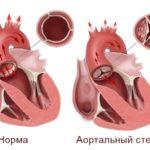 Аортальные пороки