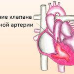 Артериальный стеноз