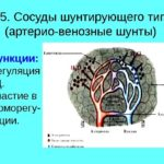 Артериовенозный шунт