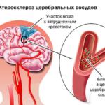 Атеросклероз церебрального типа