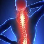 Болевой синдром в области спины
