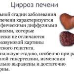 Болезни печени (цирроз)