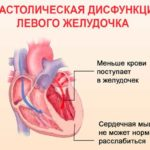 Дисфункция желудочка сердца