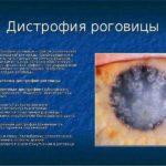 Дистрофические заболевания роговицы