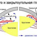 Глаукома закрытоугольного типа