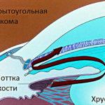 Глаукому открытоугольного типа