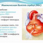 Инфаркт, аритмия и стенокардия