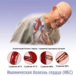 Ишемической болезни сердца