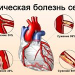 Ишемия миокарда без болевого синдрома