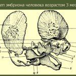 Изменения в костной структуре черепа