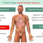 Миастенические симптомы