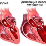 Нарушение функций сердечного желудочка слева