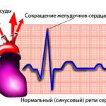 Нарушения в ритмичности сокращений сердечной мышцы