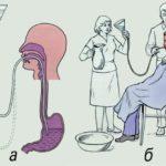 Назначается промывание желудка