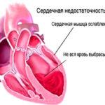 Недостаточность работы сердечной мышцы