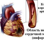 Некротизирование участков миокарда
