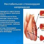 Нестабильная форма стенокардии