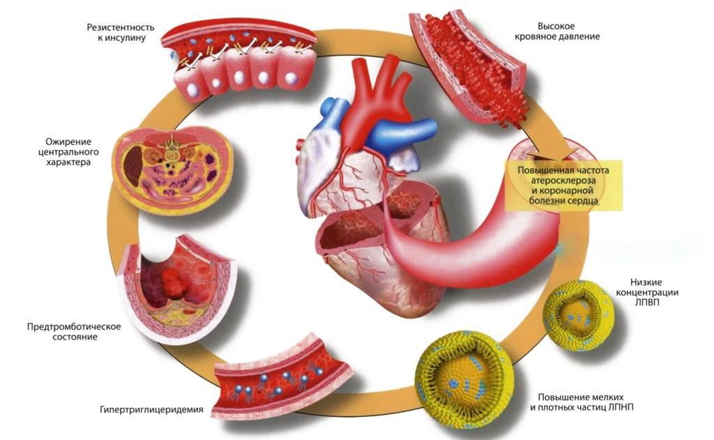 Нормализация метаболизма в миокарде