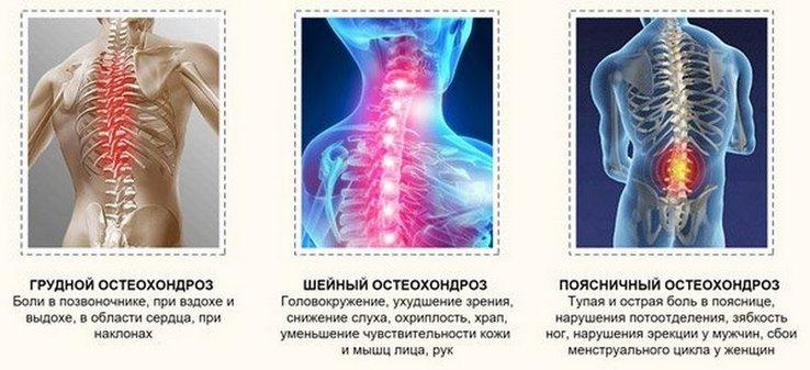 Эффективное лечение остеохондроза шейного отдела позвоночника