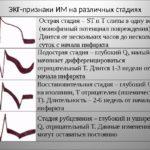 Острая фаза инфаркта миокарда