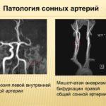 Патологии артерий