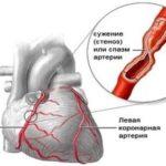 Повышение количества приступов стенокардии