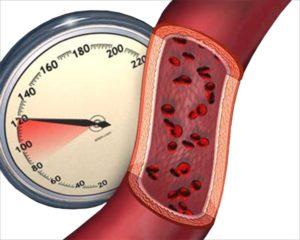 Повышенное артериальное давние