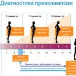 Преэклампсия во время беременности