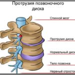 Повышенное давление при шейном остеохондрозе лечение